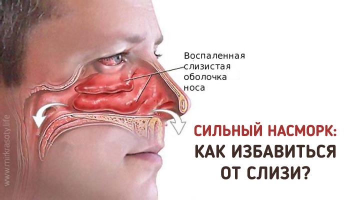 Лечение насморка заложенности носа при беременности