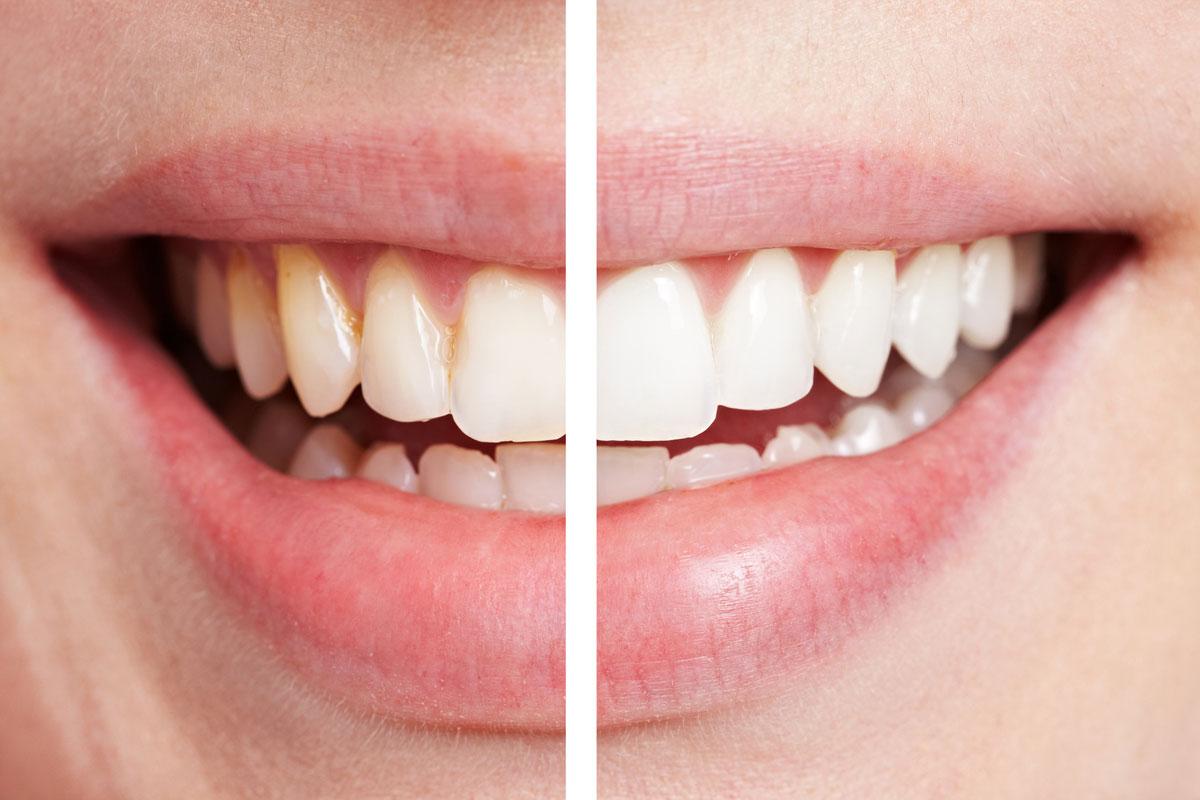 Как отбелить зубы содой и перекисью водорода и лимоном рецепт